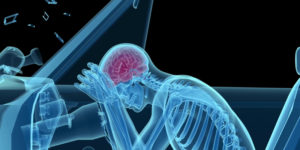 personal injury accident TBI